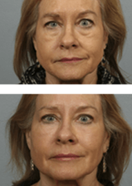 Facial Rejuvenation