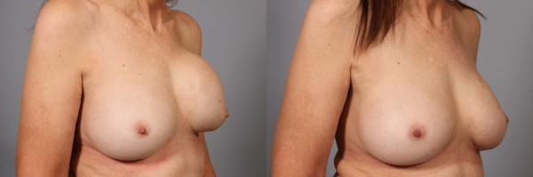 breast implant correction 2