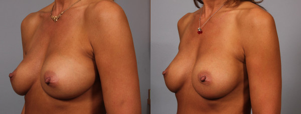 breast implant correction 4
