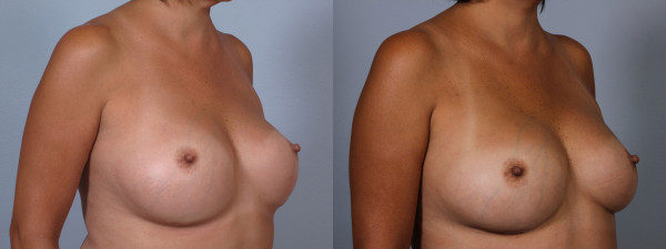 breast implant correct 6