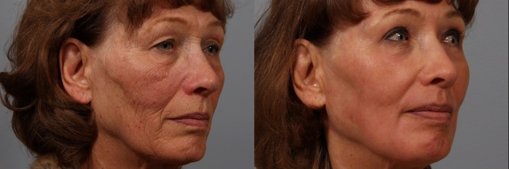 erbium laser resurfacing before and after