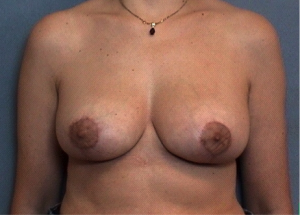 breast reduction or reshaping